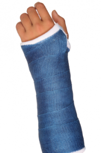 broken arm in blue cast